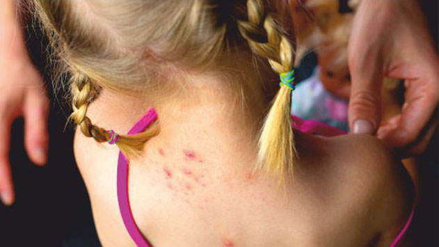 טבעי להיות בריא עקיצות מדוזות  ויתושים