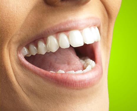 הדרך לחיוך בוהק רצופה בשיניים מולבנות