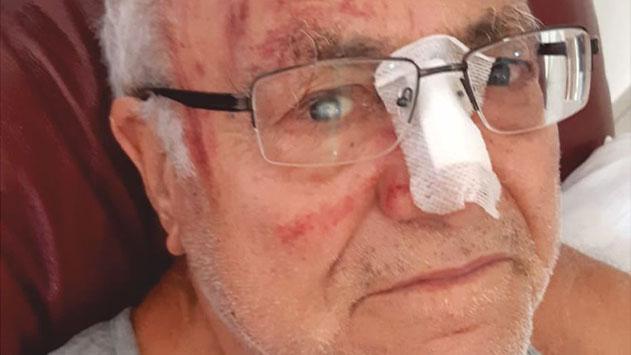 נס: קשיש בן 83 מאילת החליק לתעלה ברובע שש ושרד