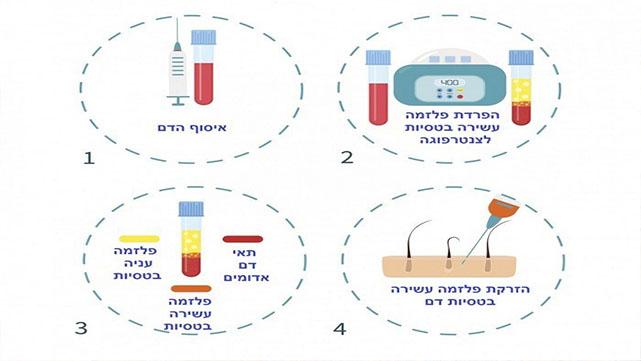 טיפול PRP – טיפול חדשני לשיער ללא תופעות לוואי במרכזי דוקטור חן