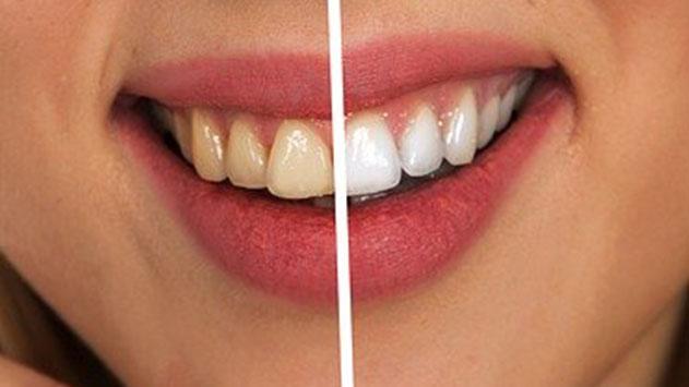 טיפולי שיניים בחו''ל – ציפוי חרסינה לשיניים בשליש מחיר מהארץ